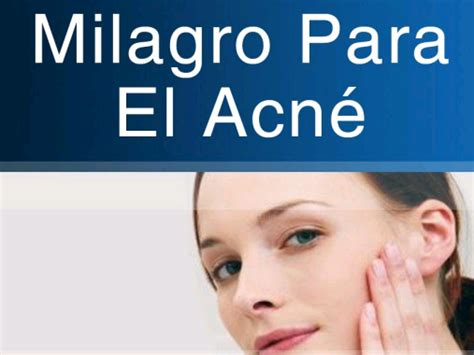 Milagro Para El Acne Gratis  Salud Y Bienestar  Taringa. Biological Safety Signs. Air Fluid Level Signs. Environmental Cause Signs. Pub Signs. Reel Wall Art Signs Of Stroke. Drugs Signs Of Stroke. Security Camera Signs. Street Detroit Signs