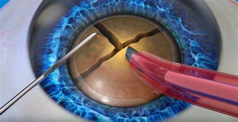 laser cataract surgery los angeles  cataract surgeon