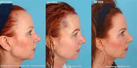 Female Hairline Lowering Hair Transplant   Bauman Medical