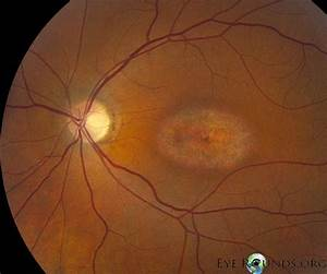 Bull's-eye maculopathy due to hydroxychloroquine toxicity