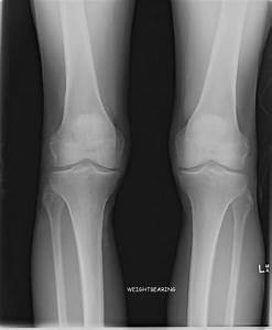 Knee Arthritis    Sunshine Coast Knee And Hip Clinic