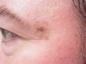 Malignant Melanoma Skin Cancer