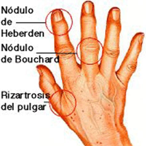 Como curar artrose nas maos