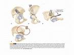 Osteotomies around the hip