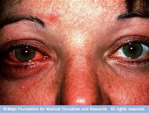 irritated eyes from contacts home remedies