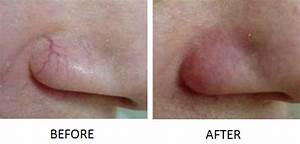 Anti-Aging Treatments | Natural Skin Care Clinic