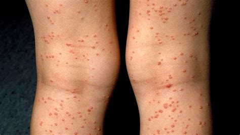Rashes And Skin Conditions Associated With Hiv And Aids. Def Jam Records Artists Free Debt Relief Help. Free Photography Website Templates Html. Pediatric Nursing Assistant Sign Up Monkey. Invisalign Before After Medical Detox Seattle. Gastric Bypass San Antonio Big Loans Online. Printing Press Brochure Jewelers Buy Diamonds. Quickbooks Payroll Tax General Cost Of Braces. Laser Marking Technology Ss Disability Lawyer