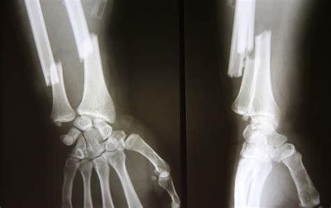 risk  osteoporosis unlock food