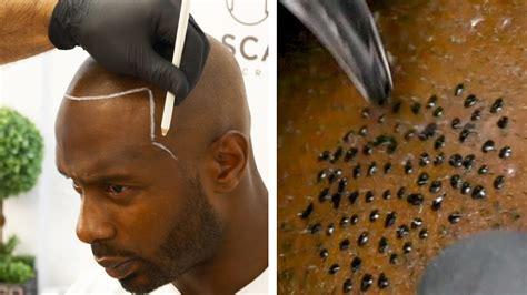 Bald Man Gets A Realistic Hair Tattoo - YouTube