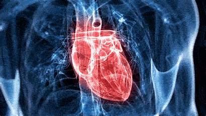 Disease Cardiovascular Heart Medicine Functional Beating Problem