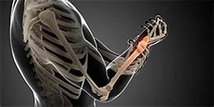Orthopädie Am Gasteig : handgelenk hand orthop die am gasteig ~ Markanthonyermac.com Haus und Dekorationen