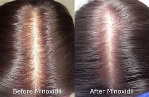 Can Rogaine  Minoxidil  Make Hair Loss Worse