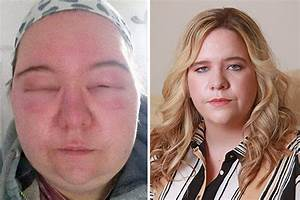 Brit Mum Looked Like 39MONSTER39 After Horrifying Allergic