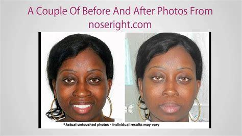 nose smaller  surgery youtube
