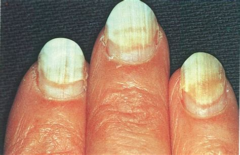toenail separated from nail bed when nails separate health nails magazine