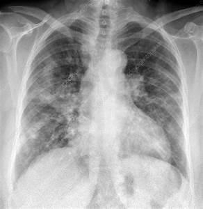 Bacterial Pneumonia  X-ray - Stock Image  5686