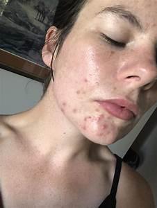 Acne  I Need Help Tackling Hormonal Acne    Skincareaddiction