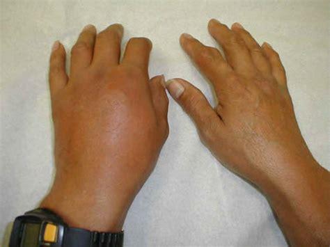 Complicaties bij reumatoïde artritis - reumafonds
