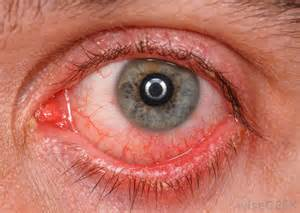 Red Eyes Causes and Symptoms