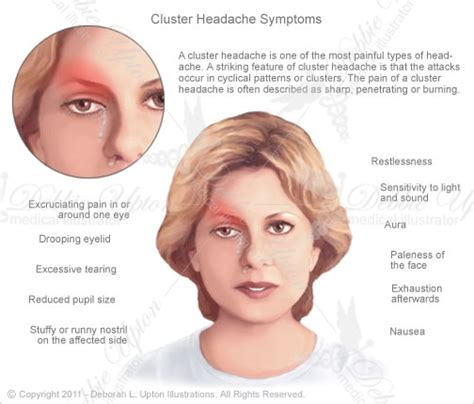 Types Of Headaches And Their Causes  Wikybrewm. Cost To Move Across The Country. Homeowners Insurance For Condos. Bank Of America Temporary Checks. How To Make A Minecraft Server Website. Exterminator Worcester Ma La Hormiga Putumayo. Bethesda Sedation Dentistry Us Import Fees. American Home Life Insurance. Employee Tracking Template Byu Online Degree