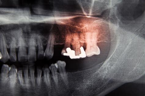 dental film ray pellicola premium cure dentale radiografica odontoiatriche care