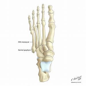 Metatarsal bones; Metatarsals