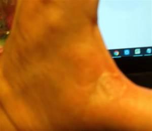 Мокрый грибок между пальцами ног лечение