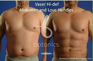 7 best Vaser Lipo - Men images on Pinterest | Vaser lipo ...