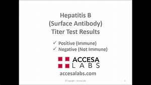 Hepatitis B Tit... Hepatitis B Surface Antibody
