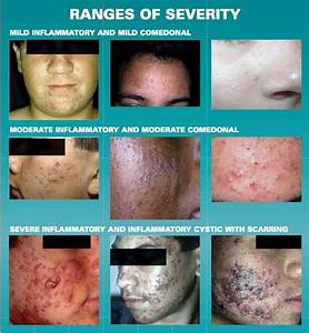 Acne And Acne Scars Meet Their Match With Specialty Lasers