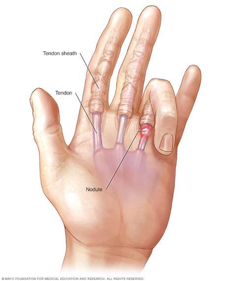 trigger finger mayo clinic