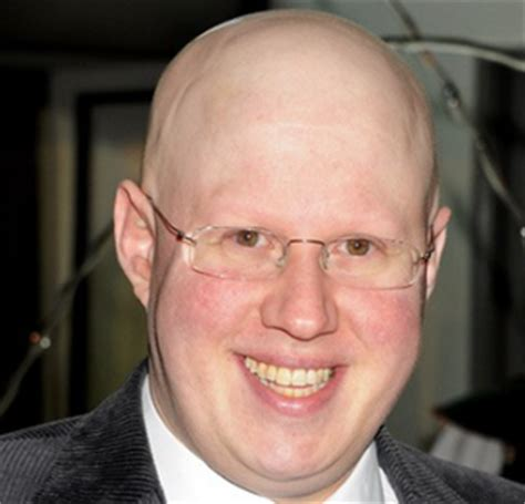 Research - Alopecia Areata