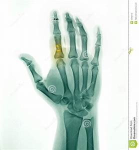 Hand X