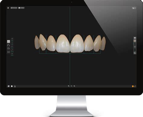 cosmetic digital smile design lane ends dental practice