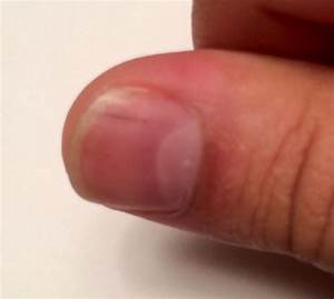 Black line on thumb nail - how you can do it at home. Pictures designs Black line on thumb nail ...