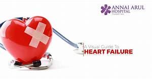 A Visual Guide To Heart Failure  U2013 Multispeciality