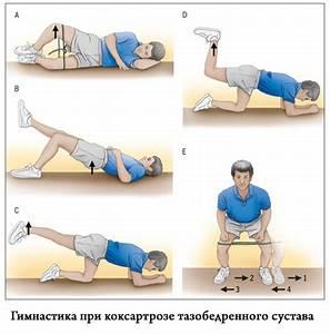 Лечение кривизны ног при артрозе