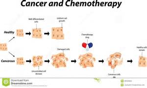 ... the progression of cancer and how it is halted using chemotherapy  Chemotherapy Cancer