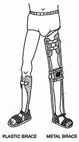 Leg Brace Braces Homemade Polio Devotee Weak Metal Legs Stories Calipers Child Plastic Children Disabled Coloring Template Body Walks sketch template