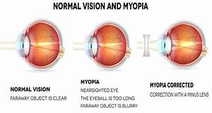 Myopia Cure | Myopia Causes | Myopia Treatment | Myopia ...
