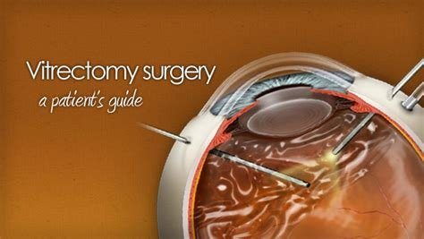 Vitrectomy Chair Cpt Code by Related Keywords Suggestions For Vitrectomy Surgery