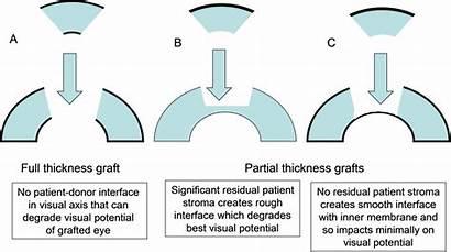 Transplant Corneal Types Surgery Thickness Graft Grafts