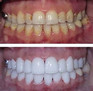 Zirconium Crowns and Bridges | Centurion Dental Studio