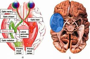 Human Visual System   A  Schematic Of The Visual Wiring In