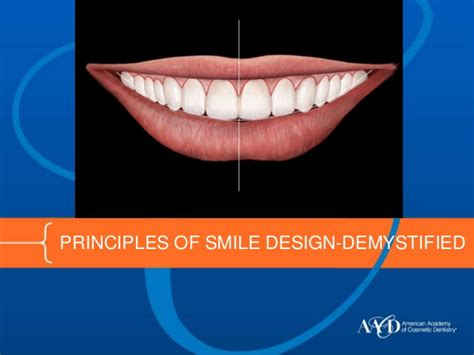 smile by design principles of smile design demystified
