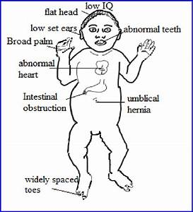 Signs Of Down Syndrome