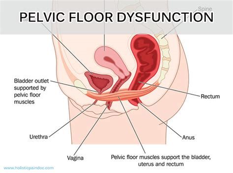 Pelvic Floor Dysfunction Chronic Constipation by Dr Hoang Integrative Managementpelvic Floor