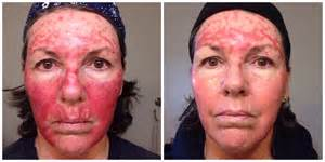 Skin Cancer Treatment – Fluorouracil Day 32 to 34 - A Thousand Words Fluorouracil Topical