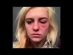 Hair Bleach Allergies Jill Scott Insomnia