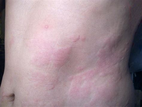 Stress Rash Effects Treatment And Alternative Causes